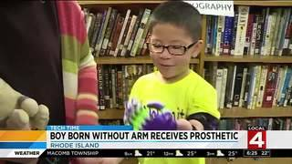 Boy born without arm receives prosthetic