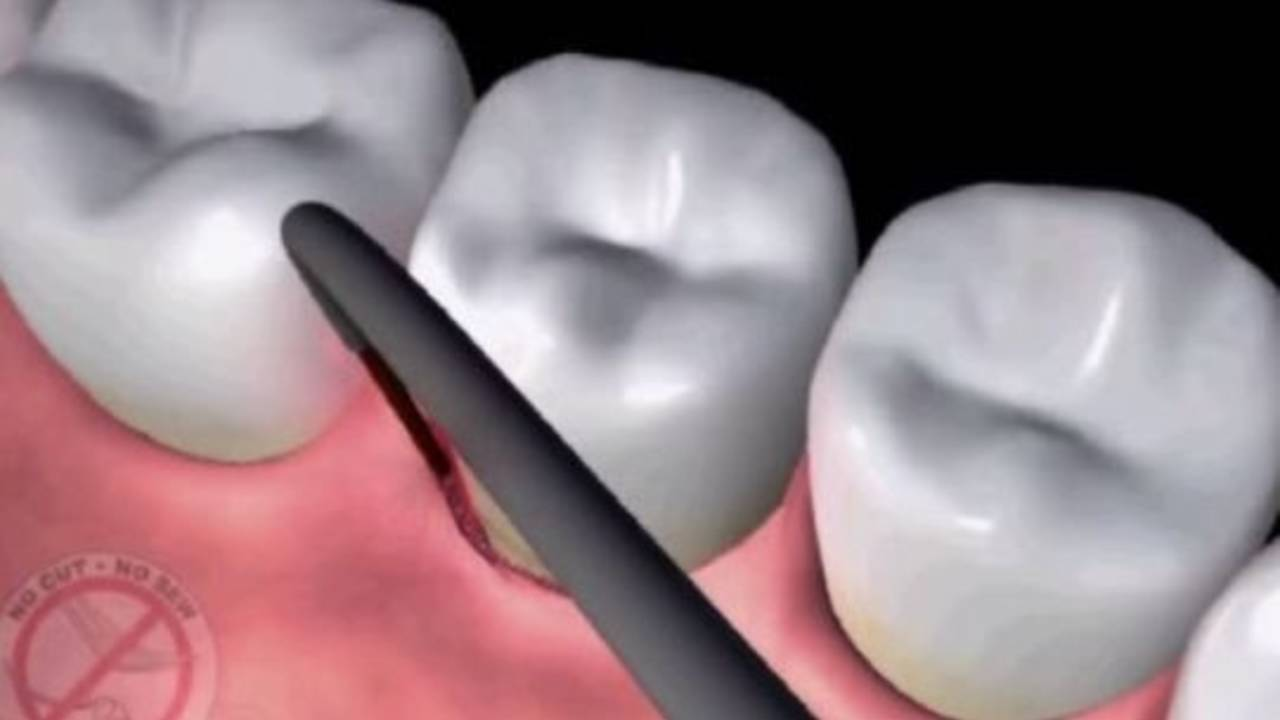 Dental laser animation_11803682