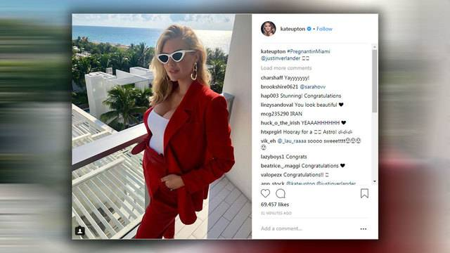 Kate Upton And Justin Verlander Expecting First Child