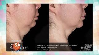 Body contouring is now offered at Bluebonnet OB/GYN