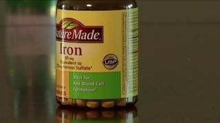 Iron deficiency signs you might be ignoring