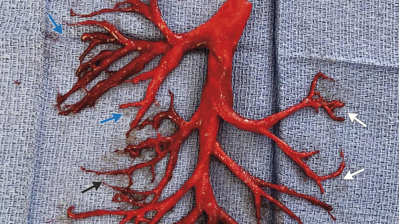 blood clot new england_1544209238375.jpeg.jpg