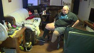 Spencer Solves It: Bill's Brigade works to get new leg for former&hellip&#x3b;